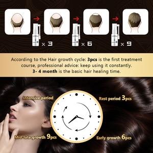 Image 2 - OMY LADY Anti Hair Loss Hair Growth Spray Essential Oil Liquid  For Men Women Dry Hair  Regeneration Repair,Hair Loss Products