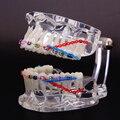2016 Dente Dentes Dental Modelo Ortodôntico Abrangente Demonstrando o Requisito Básico De Aplicação Dental Modelo Ortodôntico