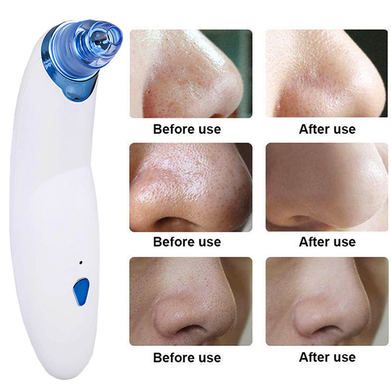 Electronic Blackhead Acne Remover Facial Care Tool professional Vacuum Dermabrasion Face Pore Cleaner Machine