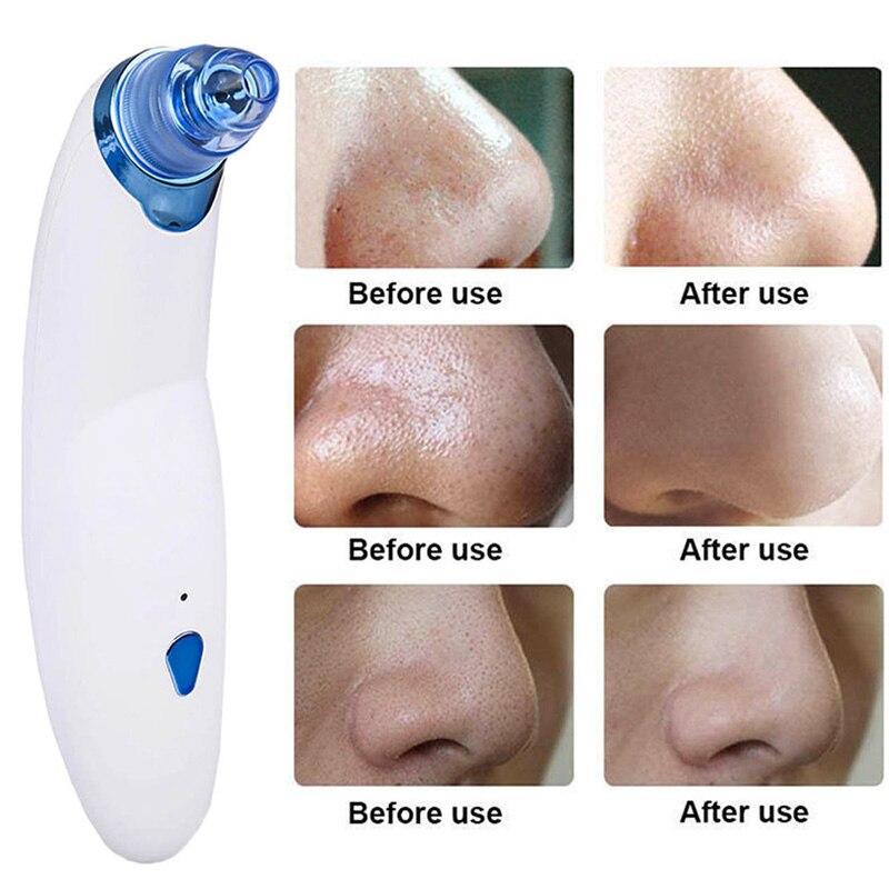 Elettronico Comedone Acne Remover Strumento Cura Del Viso professionale Vuoto Dermoabrasione Viso Pore Cleaner Macchina