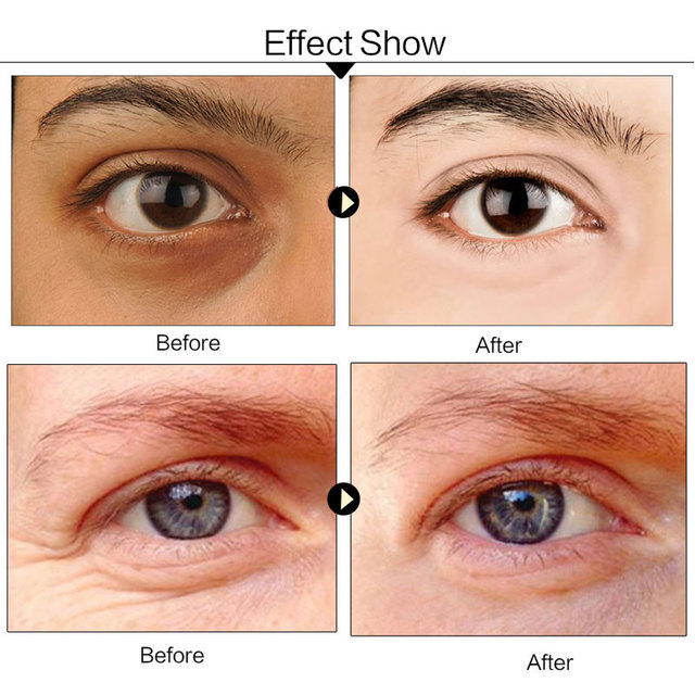efero 5pair=10pcs 24K Gold Serum Collagen Eye Mask 4