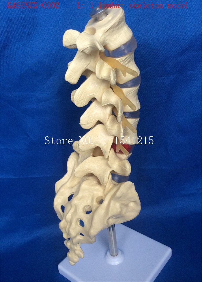 1: 1 lumbar skeleton model skeleton Skeleton model Teaching model Medical model-GASENCX-0002 reproductive system family planning model teaching medical model hanging healthy male abdominal cavity gasencx 0028