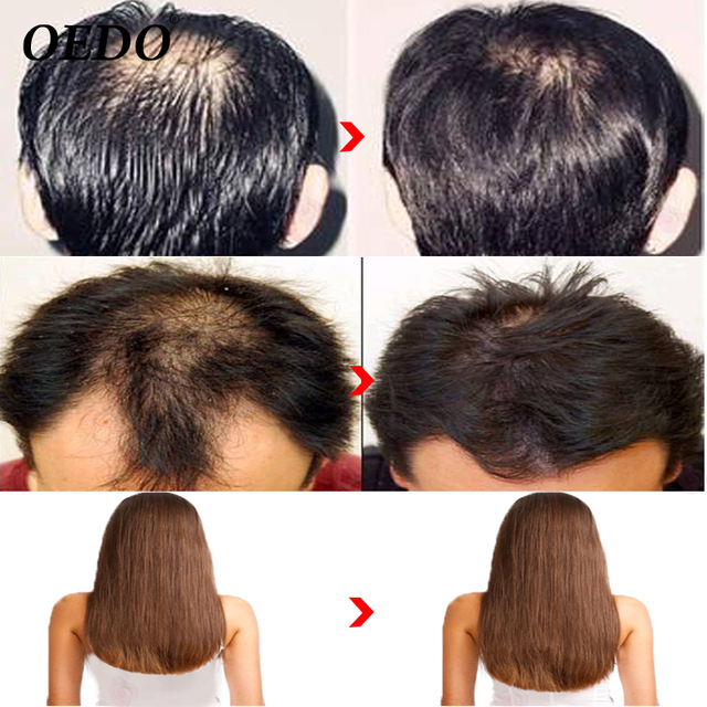 Morocco Herbal Ginseng Hair Care Essence Treatment For Men And Women Hair Loss Fast Powerful Hair