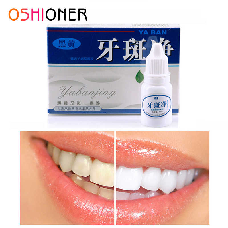 OSHIONER Dental Bleaching Liquid Magic Instant White Teeth System Teeth Whitening Smoke Stain Dental Bleaching Liquid
