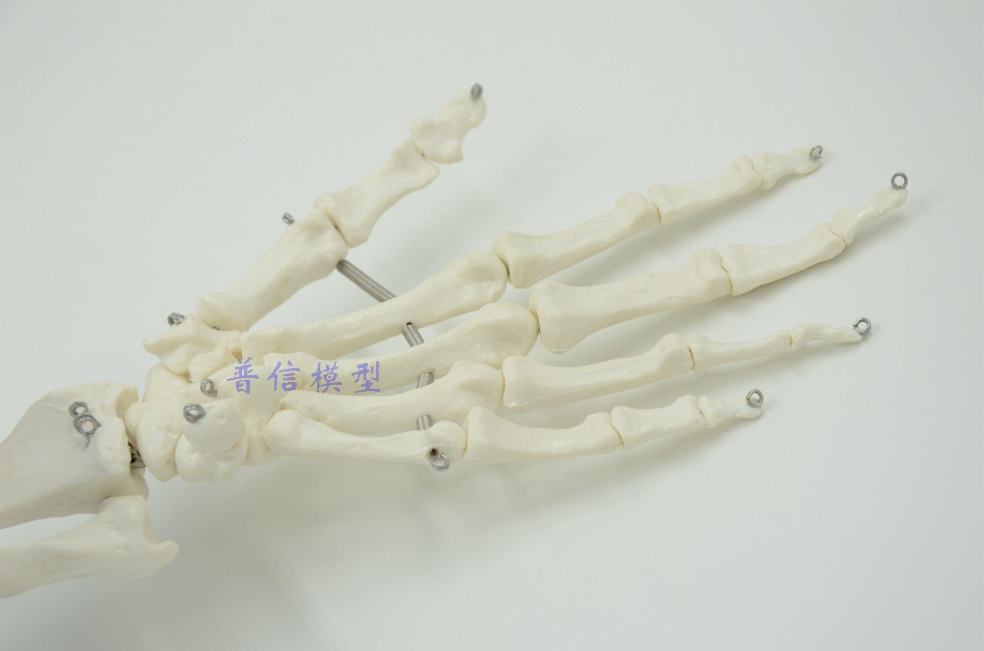 Schön Handgelenk Und Handknochen Galerie - Menschliche Anatomie ...