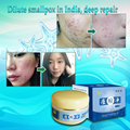 100% Natural herbal acne Ointment,remove acne,scar,repair pit, first aid Essence,powerful pustule,Folliculitis