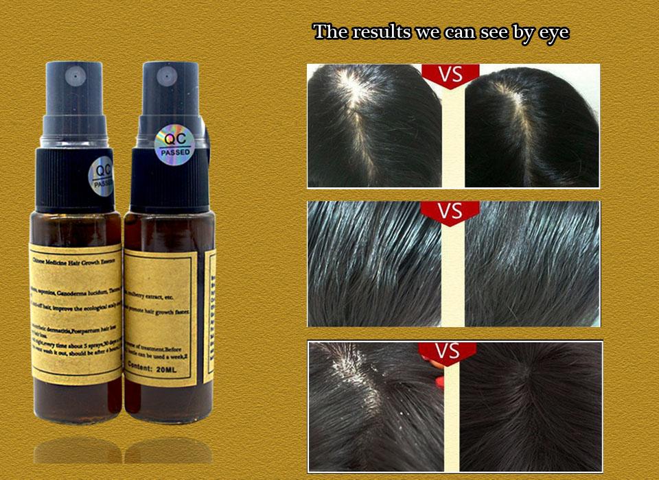 Fine Women Hair Growth Products Juriewicz Info Hairstyles For Women Draintrainus