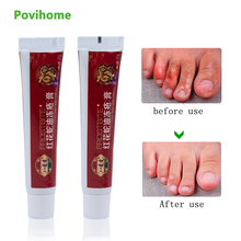 1pcs Anti Dry Crack Cream Repair Frostbite Snake Oil Hand Foot Ointment Heel Chapped Peeling Medical Plaster 30g P1010