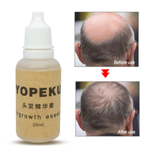 YOPEKU Ginger Hair Growth Oil Plant essential oil