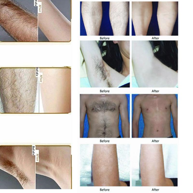 Крем для перманентного удаления волос в подмышках мужчин и женщин