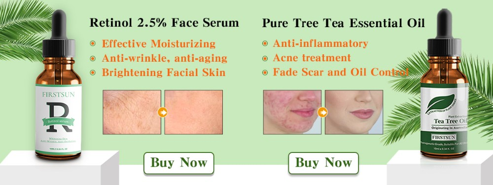 2pcs Anti Acne Cream Chinese Herbal Medicine Red Nose Acne Rosacea