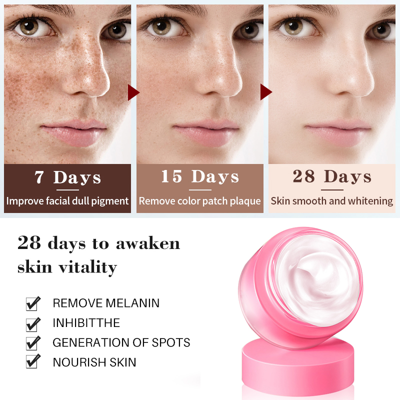 EFERO Face Whitening Cream Freckle Removal Cream Melanin Dark Spot Acne Treatment Moisturizing Cream Repair Freckle Face Serum in Facial Self Tanners Bronzers from Beauty Health