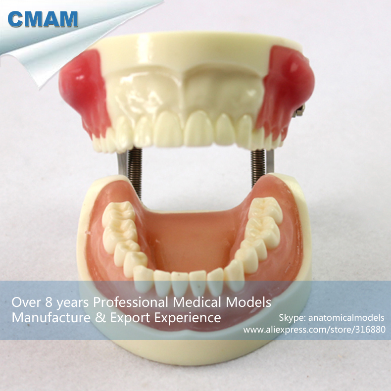 CMAM-DENTAL23 Incision/Pus Removal Model, Patient Education Training model, Dental Model blondme шампунь с кислым ph blondme shampoo all blondes 1000 мл