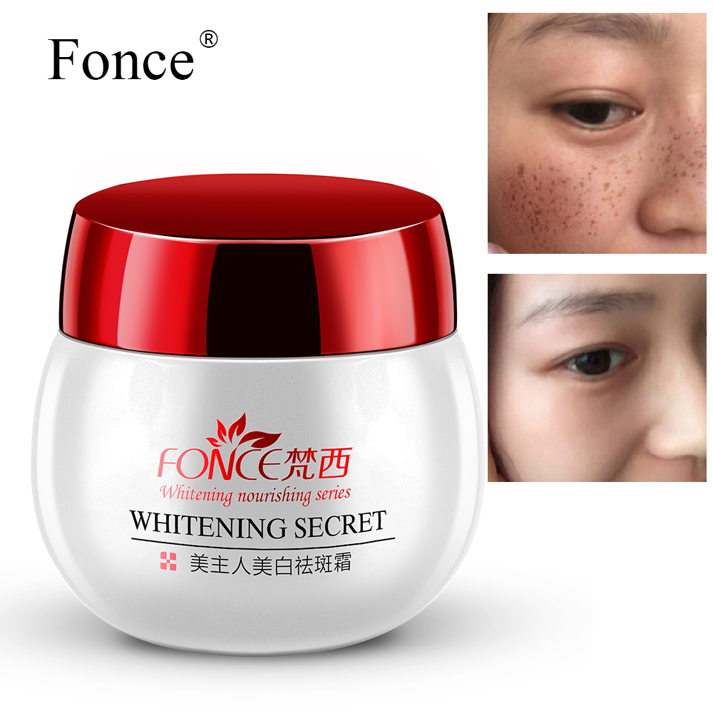 Freckles Whitening Cream Strong Reduces Age Spots anti Freckles Fade Dark Spot treatment freckles Facial Moisturizer Serum 30g