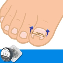 Monja 12pcs Ingrown Toe Nail Correction Wire Fixer Pedicure Paronychia Recover Toenails Corrector Foot Care Tool