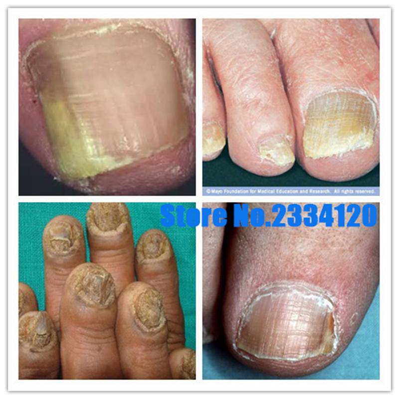 Chinese Medicine Herbs Toe Nail Fungus Treatment Anti Fungal Nail ...