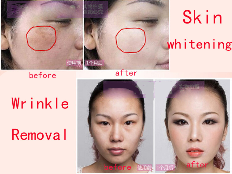 RF Thermage Facial Radio Frequency Skin Tightening Wrinkle Removal Face Lifting Body Care Beauty Equipment
