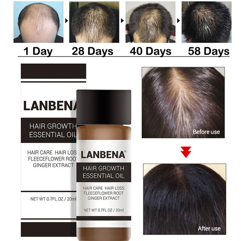 LANBENA Anti Hair Lo