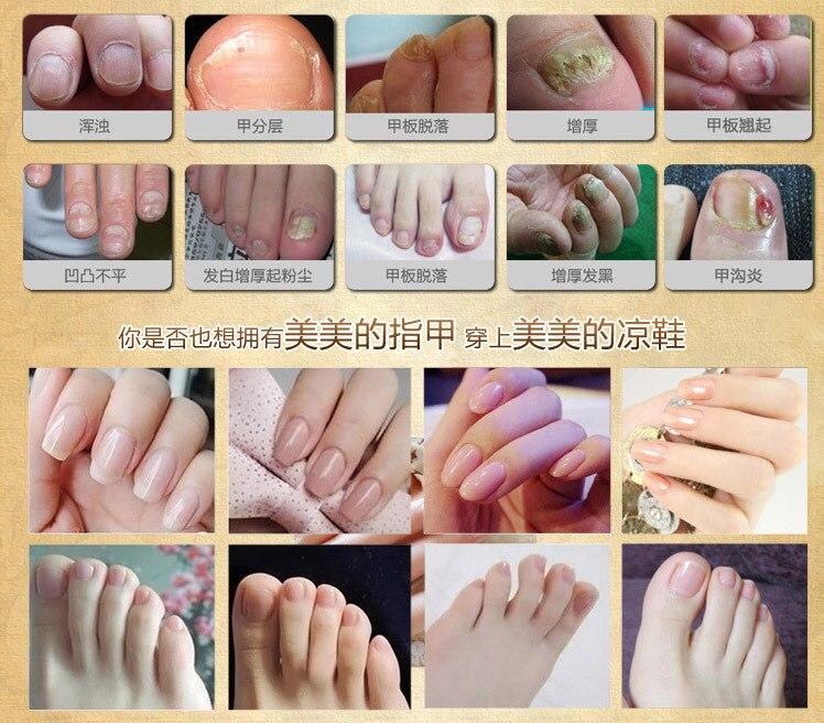 Men and women onychomycosis treatment nail fungus removal Nail ...