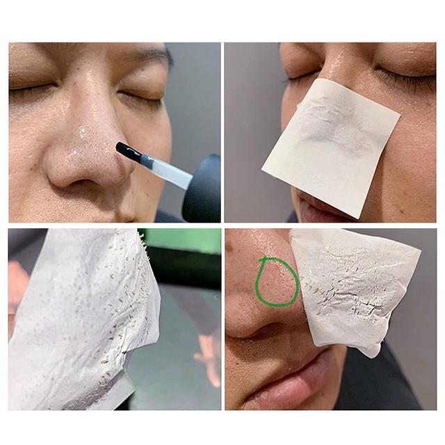 BREYLEE Blackhead Mask Pore Refining Serum Blackhead Remover Shrinks Pore Acne Treatment Essence Whitening Face Mask Skin Care