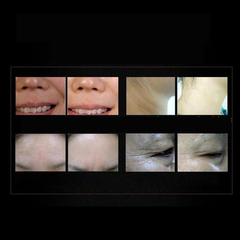5 st Six Peptides Serum Anti-Wrinkle Cream Anti Aging Kollagen - Hudvård - Foto 5
