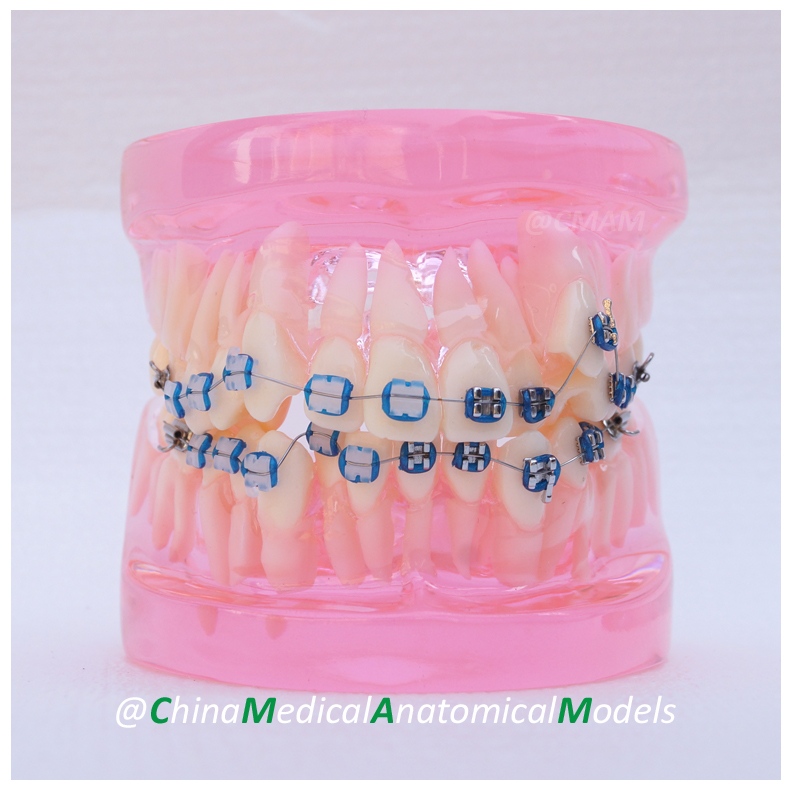 13036 DH205-2 Dentist Transparent Oral Dental Ortho Metal and Ceramic Model, China Medical Anatomical Model dh202 2 dentist education oral dental ortho metal and ceramic model china medical anatomical model