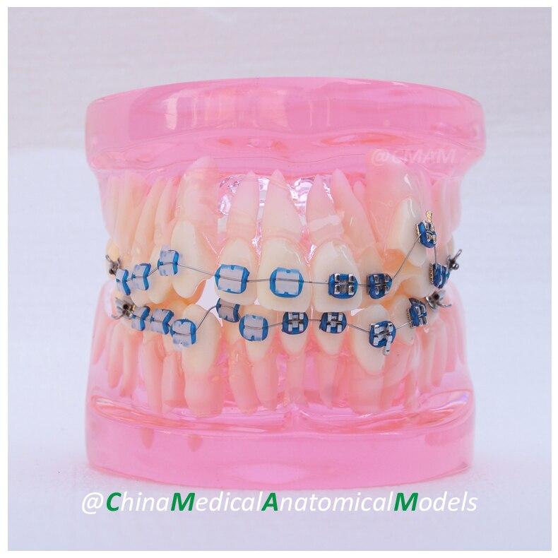 DH205-2 Dentist Transparent Oral Dental Ortho Metal and Ceramic Model, China Medical Anatomical Model dh203 2 dentist demo oral dental ortho metal and ceramic model china medical anatomical model