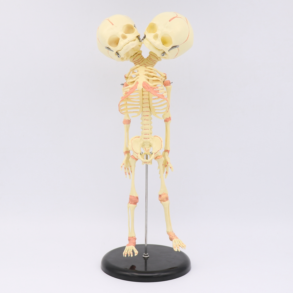 35CM Two-headed Skull Human Newborn Baby Double Head Anatomy Skull Skeleton Anatomical Brain Education Anatomical Study Model