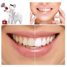 30g Teeth Whitening Scaling Powder Oral Hygiene Cleaning