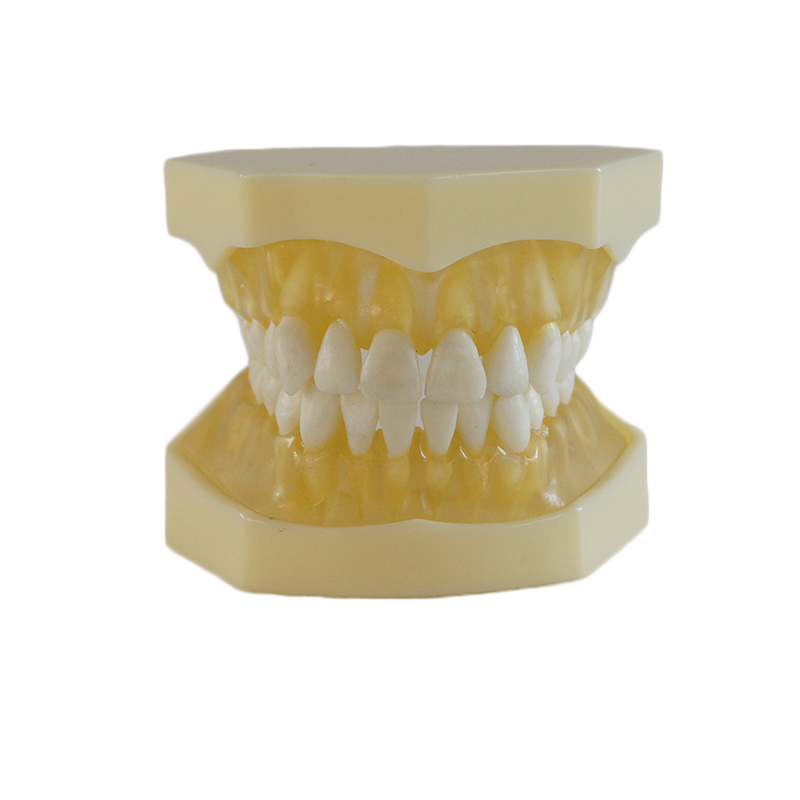 Denture Dental Teaching model Dental Teeth Model 28 tooth / Can Be Adjusted dental teaching model caries model of child gum can be removed