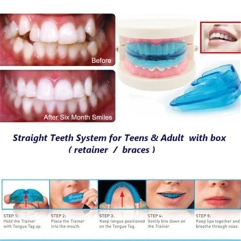 Teethers Dental Orthodontic Teeth Corrector Braces Tooth Retainer Straighten Tool Baby