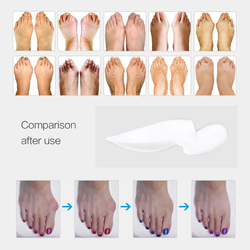1Pair Orthopedic Hallux Valgus Pro Bunion Corrector Toe Separator Stretchers Protector Pedicure Tool Silicone Feet Care in Foot Care Tool from Beauty Health