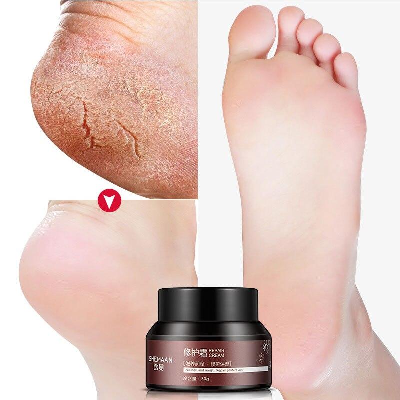 SHEMAAN Foot Crack Cream Prevent Skin Crack Repair Anti Frostbite Deep Nourishing Repair Creams Dry Rough