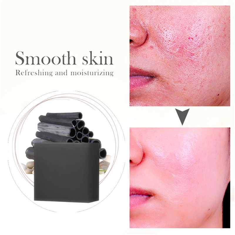 Pore Cleaning Acne Scar Removal Bamboo Charcoal Soap For Face Skin Care Whitening Soaps Plant Stretch Marks Nourishing For Face