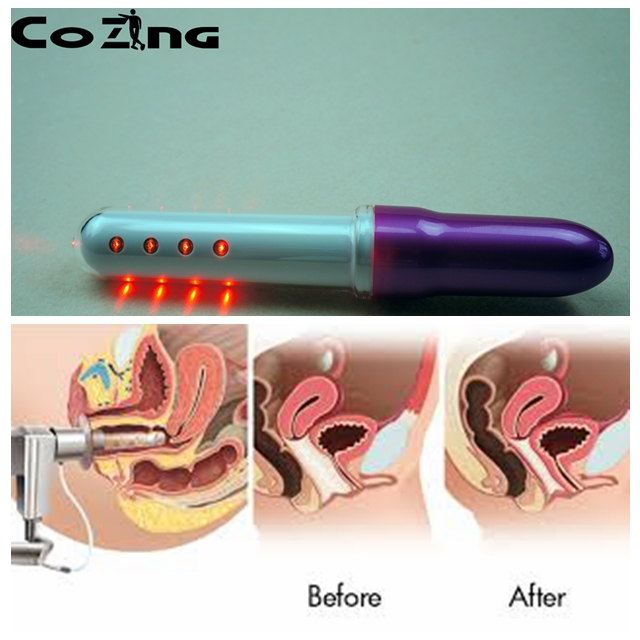The latest  cold laser therapy  gynecological vaginitis  therapy apparatus for female home use device as fir vaginitis home use red laser light therapy device for the old aged healthcare