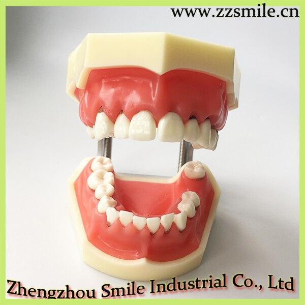 Modèle de maladie parodontale dentaire/modèle médical de dent M4024
