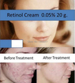 Free shipping Hot RETINOL VITAMIN A CREAM for Acne Ageing Wrinkles 20g