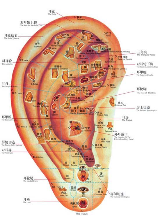 acupuncture-oreille