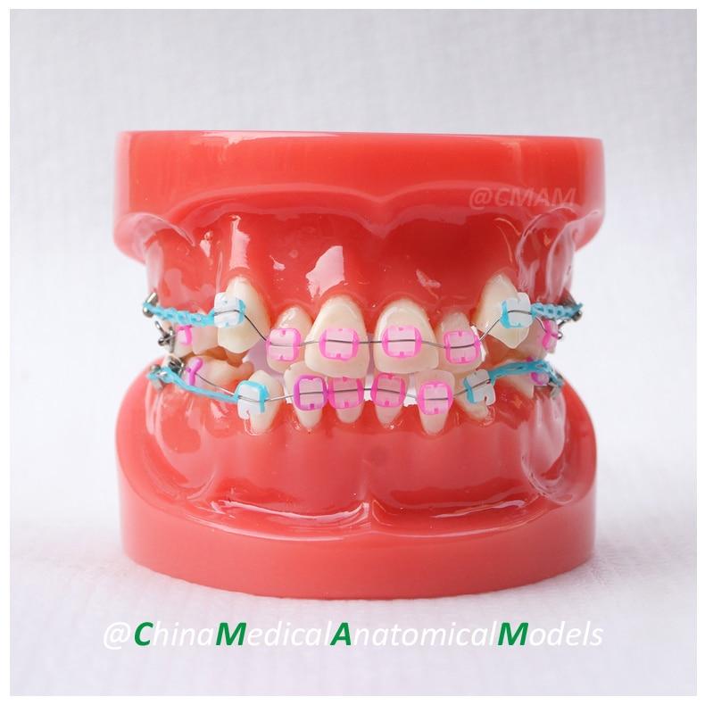 13021 DH201-3 Ortho Ceramic Bracket, Dentist Gift Oral Dental Ortho Ceramic Bracket Model, China Medical Anatomical Model dh203 2 dentist demo oral dental ortho metal and ceramic model china medical anatomical model