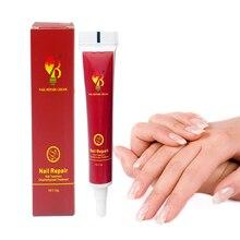 Crema de tratamiento de uñas de yeso, medicina china, onicomicosis, antiinfección de uñas, combate las bacterias, ungüento natural