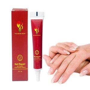 Image 1 - Médecine chinoise plâtre crème de traitement des ongles Onychomycosis Anti Infection des ongles combat les bactéries naturellement pommade