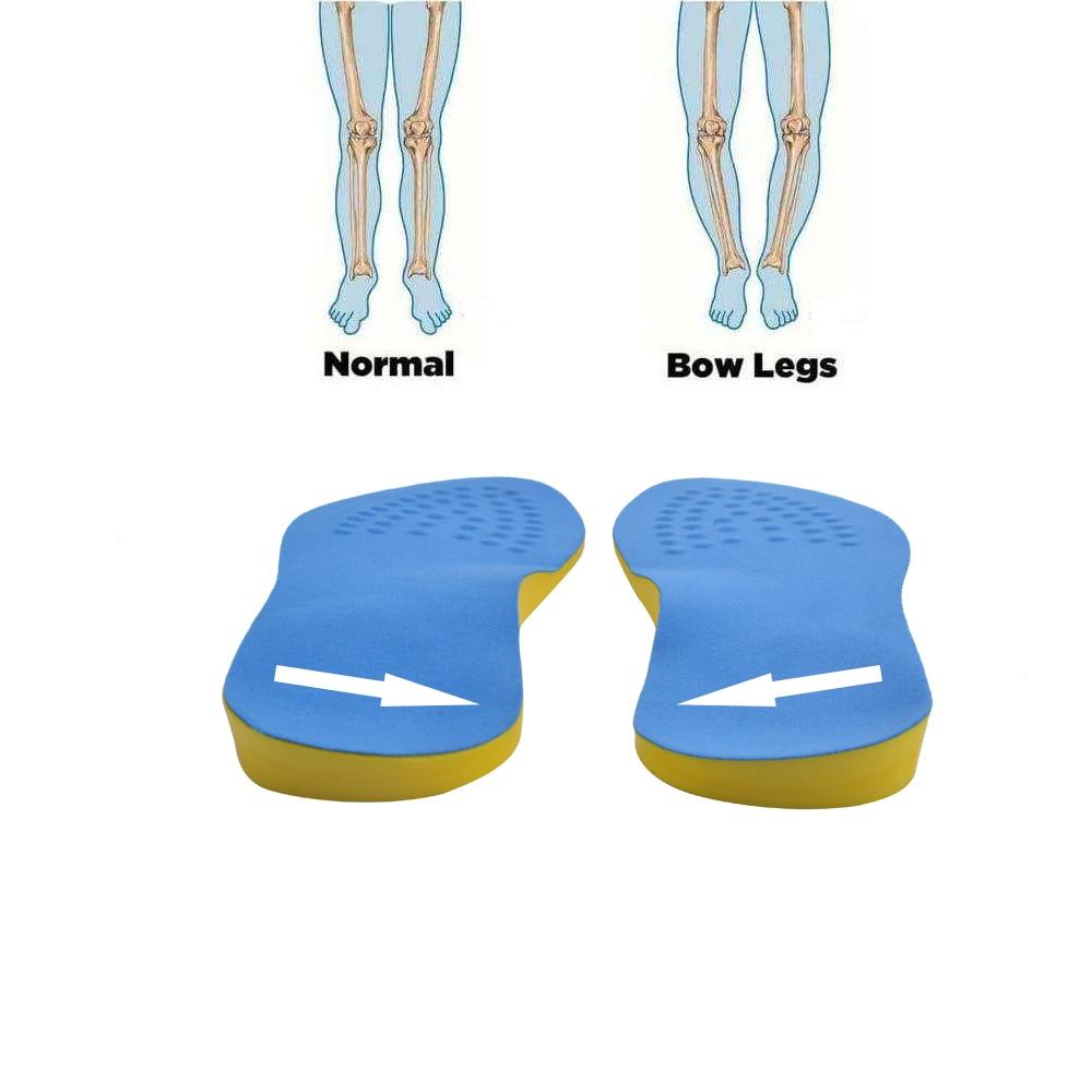 EXPfoot PU Cotton Unisex O Leg  Valgus Varus Corrector Orthotic Insoles Comfortable Breathable Massaging Foot Pads Inserts  45 valgus pro в казахстане на сландо
