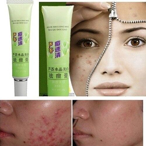 Acne Remove font b Cream b font Remover Vanishing Pimples Spot Black Head Treatment font b