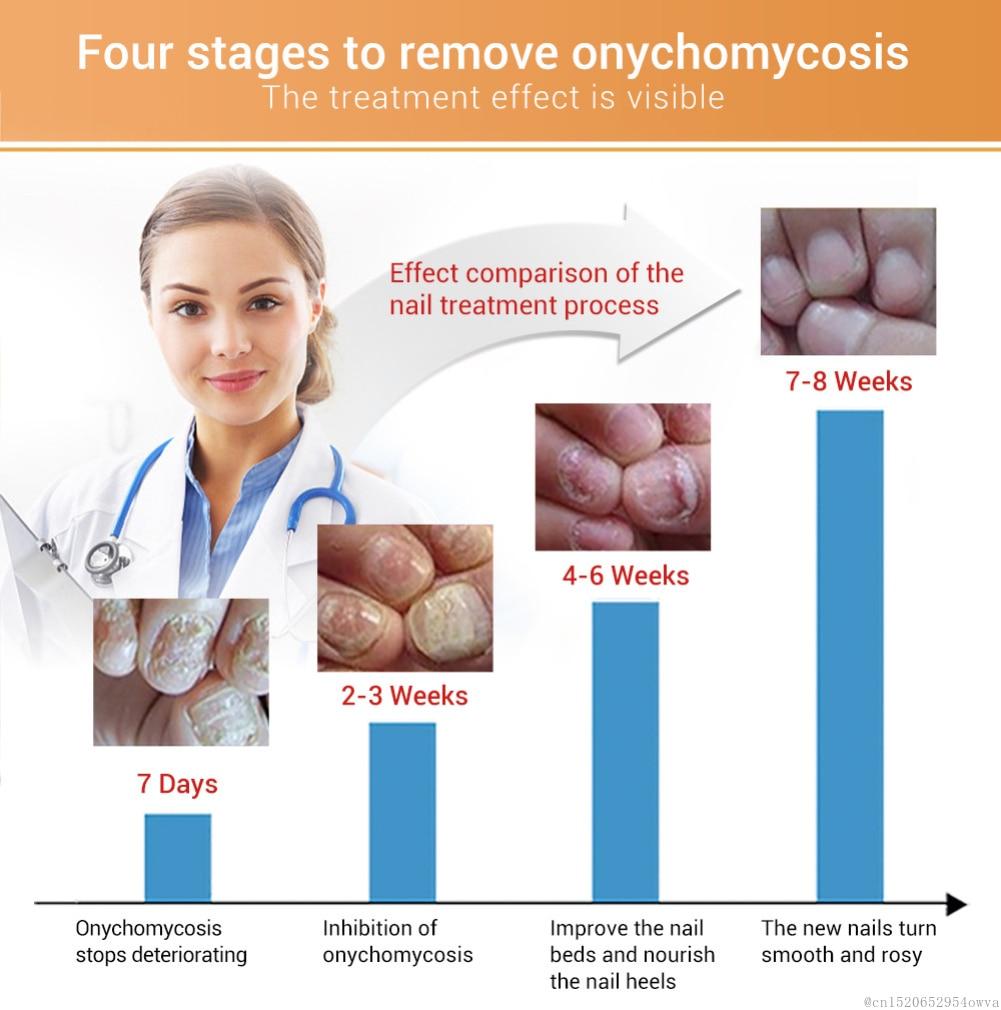 LANBENA Nail Repair Liquid Treatment With File Nail Anti Remove Nail Onychomycosis Fungus Toe Nourishing Brighten Nail TSLM1