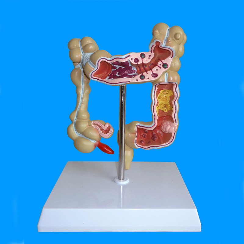 Anatomical Human Colon Pathological Diseases Model - Medical Anatomy human education anatomy rectum pathologies model pathological model of rectum rectum pathological rectum model gasen xh010