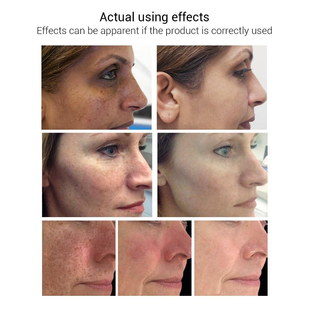 LANBENA Отбеливающее эфирное масло Витамин С Сыворотка для кожи средство для снятия крема пятнышко выцветает темные пятна уход укрепление против старения