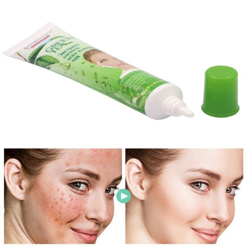 New Arrival Anti Acne Cream Oil Control Acne Treatment Blackhead Remova Shrink Pores Acne Scar Remove Face Care Whitening