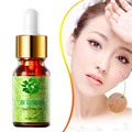 100% Pure tea tree essential oil for acne treatment and Remove whelk shrink pore antiseptic inhibits bacteria fungi cleanses
