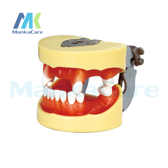 Manka Care - Implant Model Oral Model Teeth Tooth Model pro teeth whitening oral irrigator electric teeth cleaning machine irrigador dental water flosser teeth care tools m2