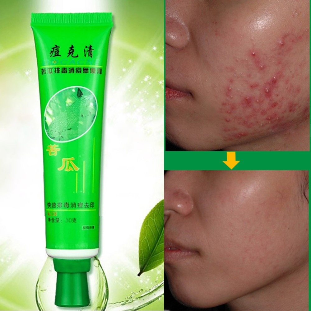 New Fashion 30g Face Skin Care Acne Cream Blain Desalt Blain Imprint Face Cream 1